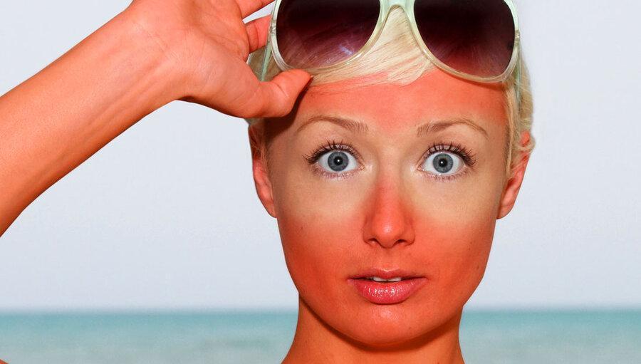 درباره آفتاب سوختگی، آفتاب زدگی و حساسیت به آفتاب